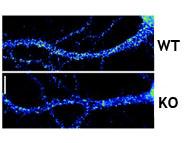 Kv4.2 protein in brain cells