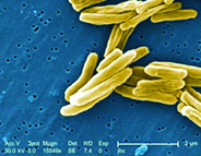 TB Treatment Could Limit Infection and Reduce Drug Resistance