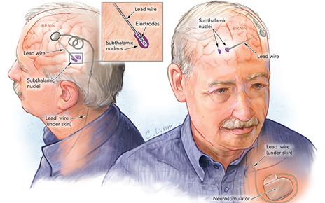 deep-brain stimulation